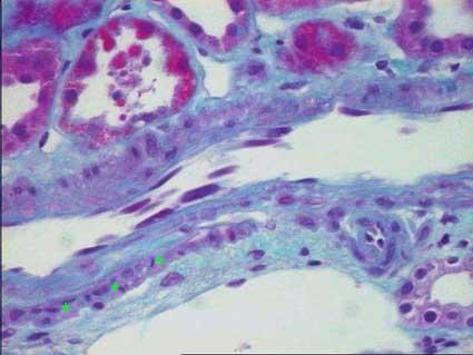 Sanar la tromboflebitis de las venas profundas