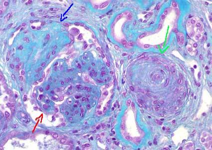Necrosis fibrinoide hipertensión benigna
